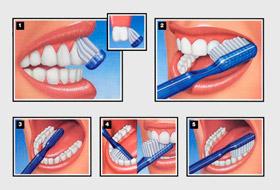 Советы по чистке зубов
