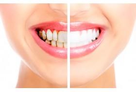Эффективно удаляем зубной налет