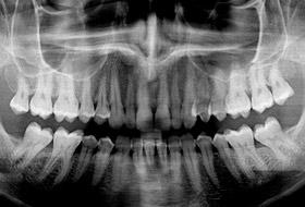 12 интересных фактов о зубах